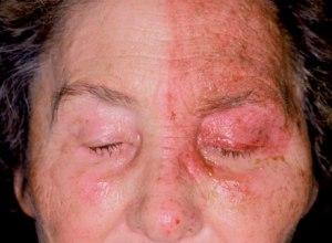 Zòster Virus Tipus IV Hespes