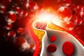 colesterol obstruindo artéria parcialmente