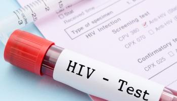 Resultado de imagem para HIV sangue fotos