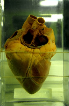 heart-1-1566858