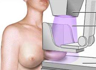 mamografia2_1042
