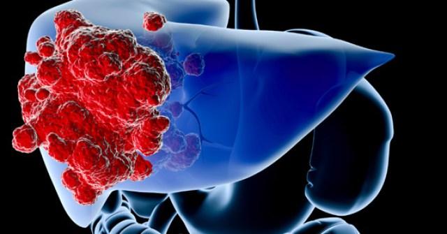 Representação Gráfica de um figado com câncer em decorrencia de hepatite C