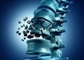 osteoporose-e1463063892790