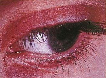 soa-pediculosis-pubis-eyes