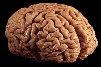 cerebro-600x402